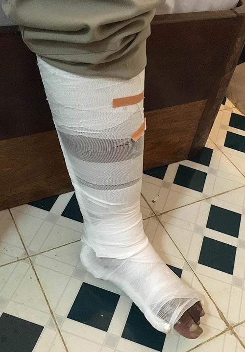 Tim's broken leg wrapped at hospital in Laos